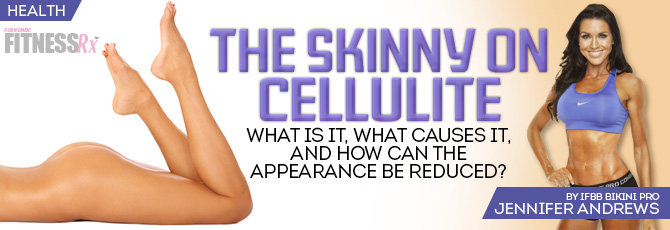 Get the Skinny on Cellulite