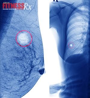 Breast Cancer: A Trainer's Story - Staying fit and motivated during treatment