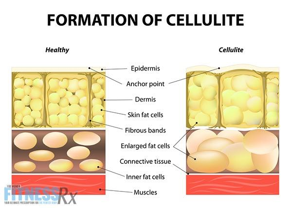 Cellulite Scams and Remedies - How Effective Are the Popular Treatments?