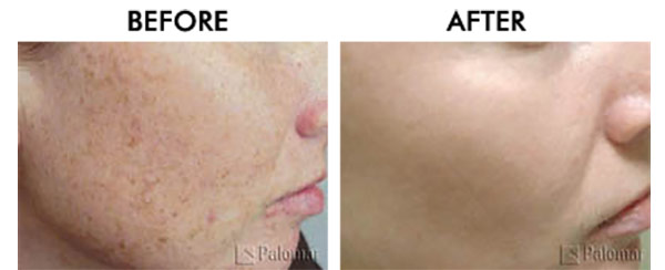 Skin Rejuvenation with Intense Pulsed Light