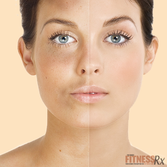 treating skin discoloration | fitnessrx for women, Skeleton