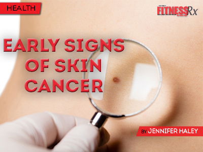 Warning Signs of Skin Cancer - Early Detection and Treatment Leads to Cure